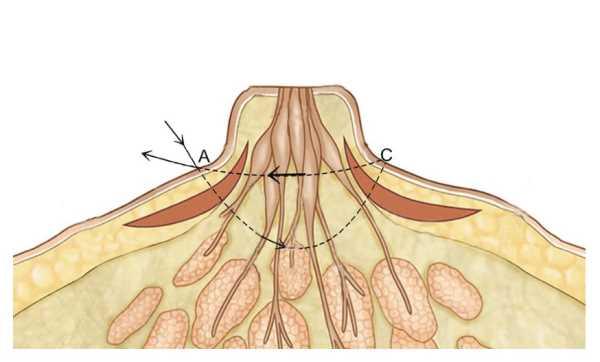 新型的乳頭凹陷手術