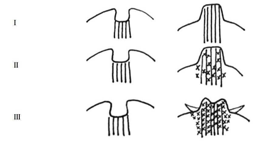乳頭凹陷分三級