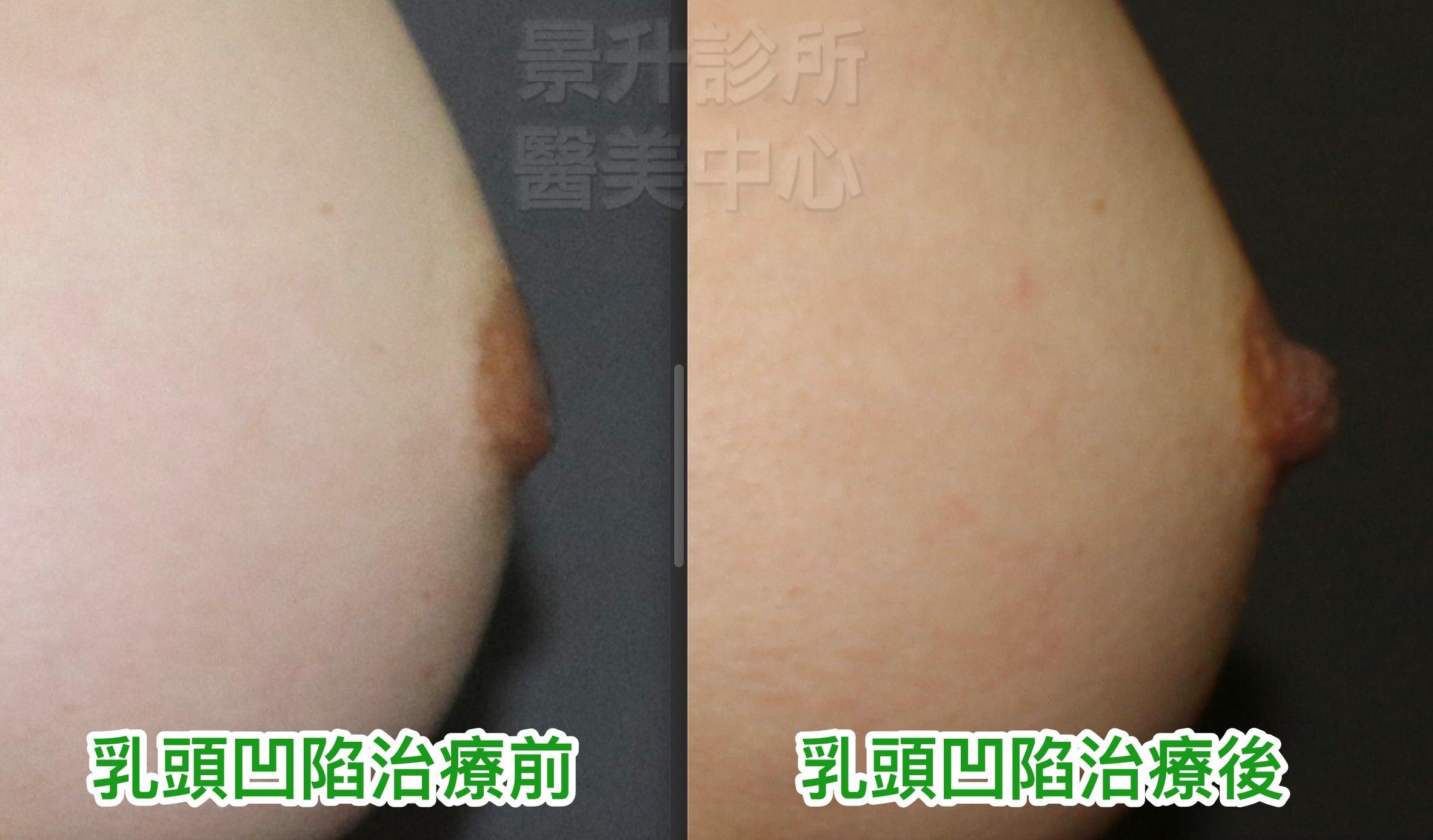 乳頭凹陷治療前後圖2