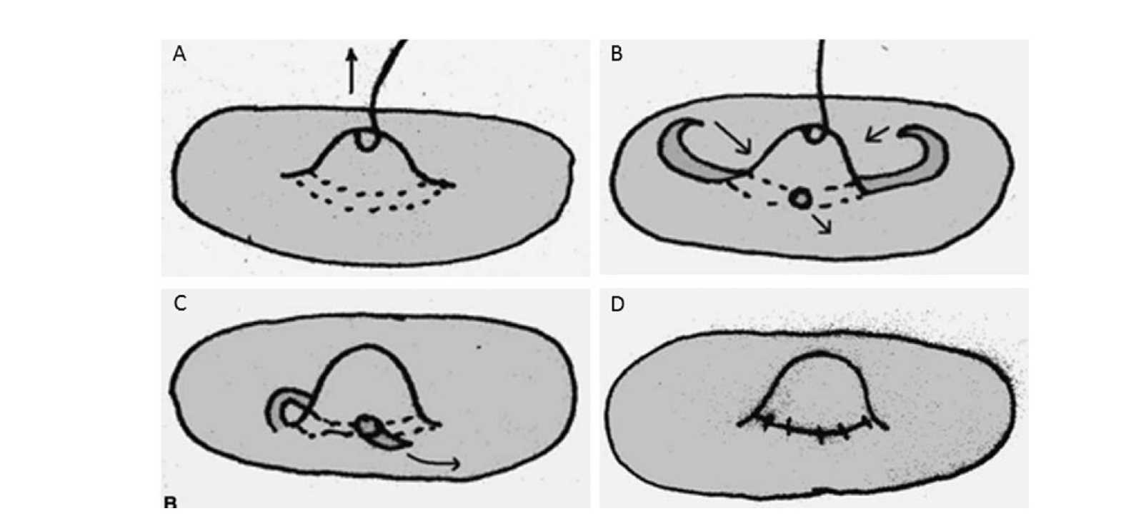 乳頭凹陷如果沒有處理下方的纖維拉扯,很快又會縮回去