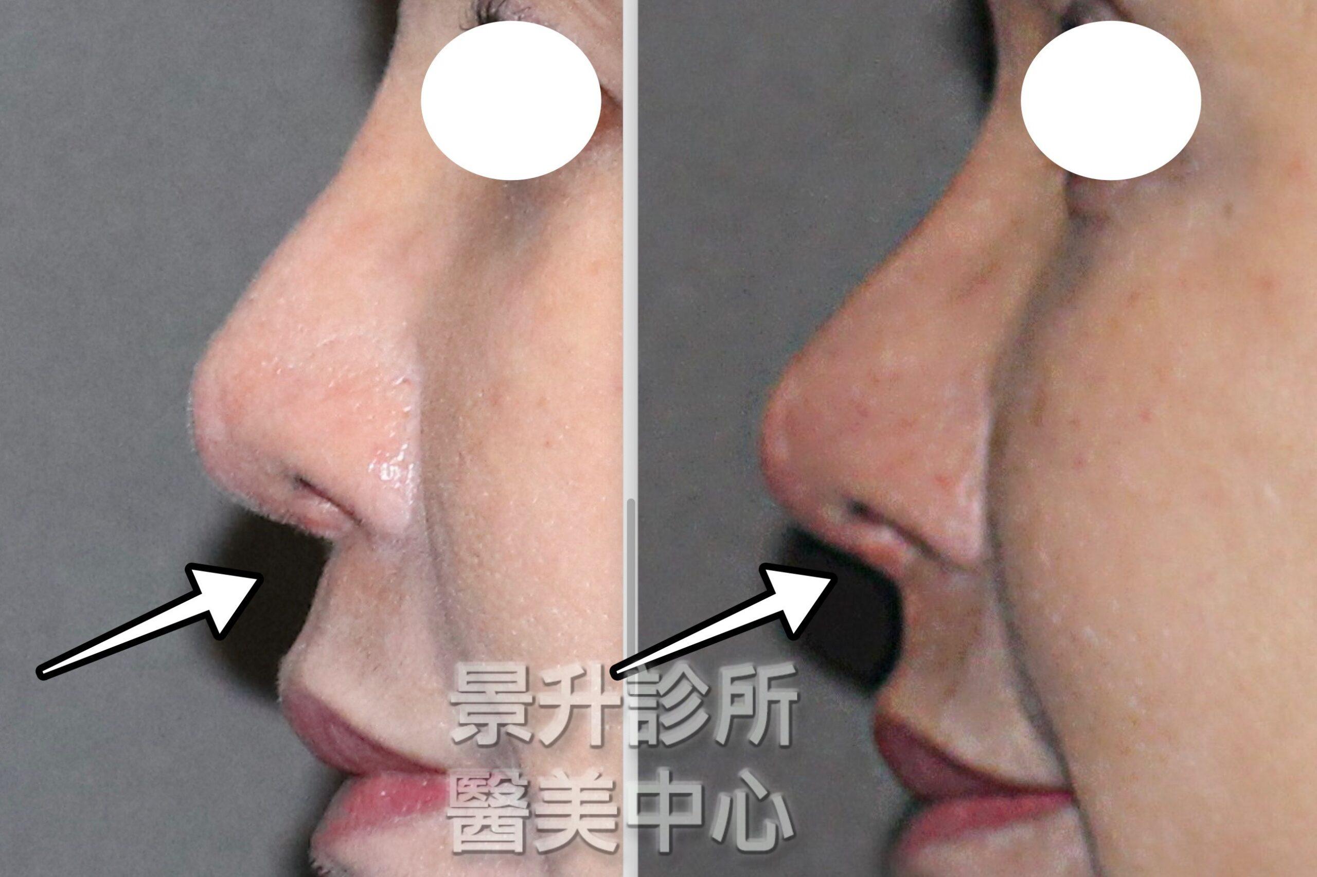 玻尿酸隆鼻後,鼻尖更翹更間更挺,鼻中柱和鼻唇角都變漂亮