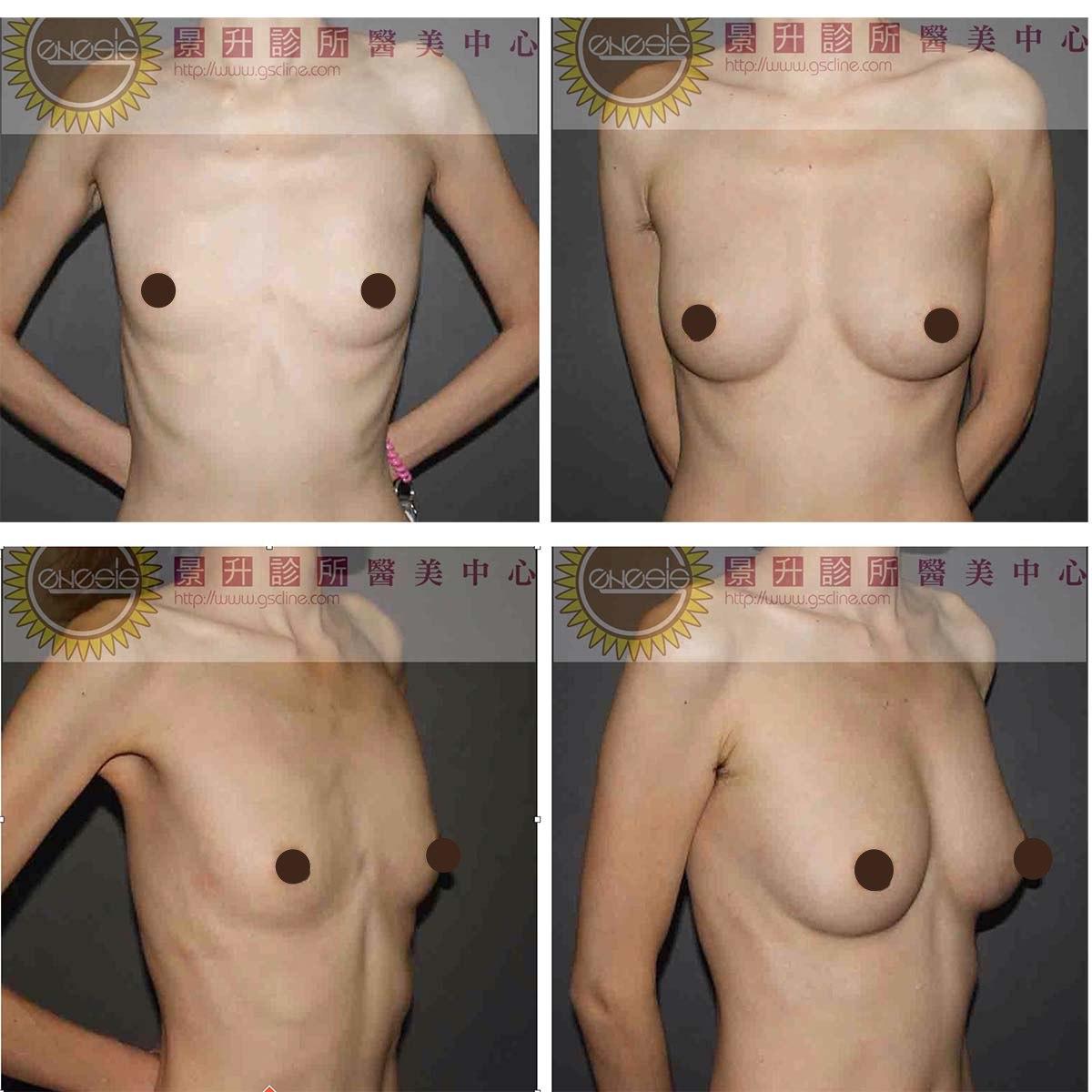 每邊胸部打入300ml左右的自體脂肪隆乳,一年後回診