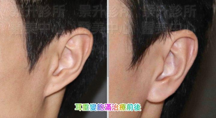 耳垂飽滿-玻尿酸注射3