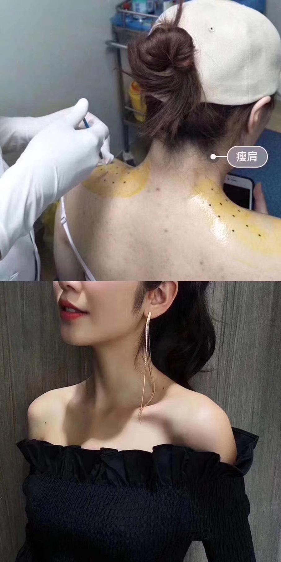 瘦肩針注射過程,不需麻醉,無修復期