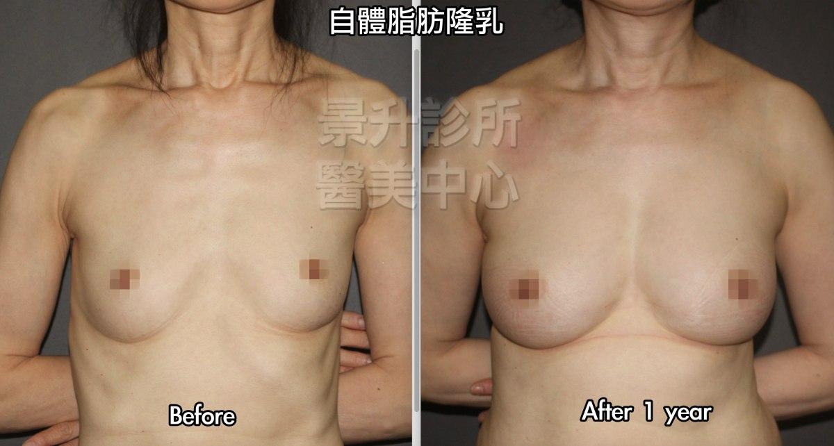 自體脂肪隆乳一年後的效果,右乳打入380 mL,左乳打入355 mL