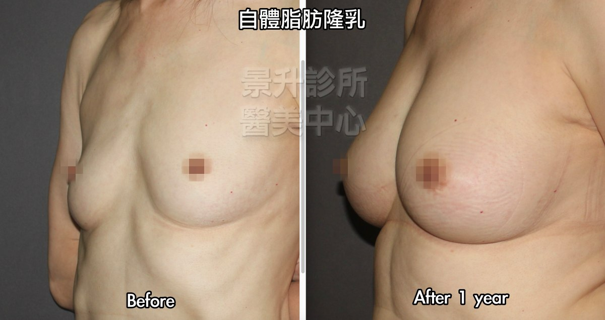 自體脂肪隆乳一年後的效果