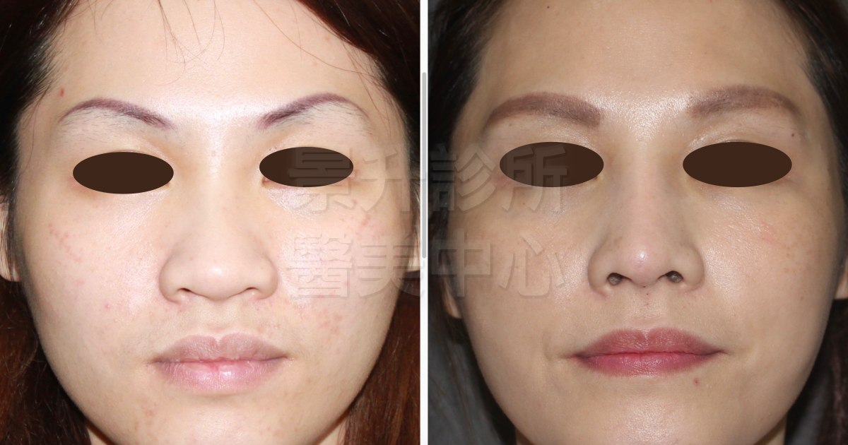 玻尿酸隆鼻後,鼻樑變挺、鼻尖加高、鼻翼縮小