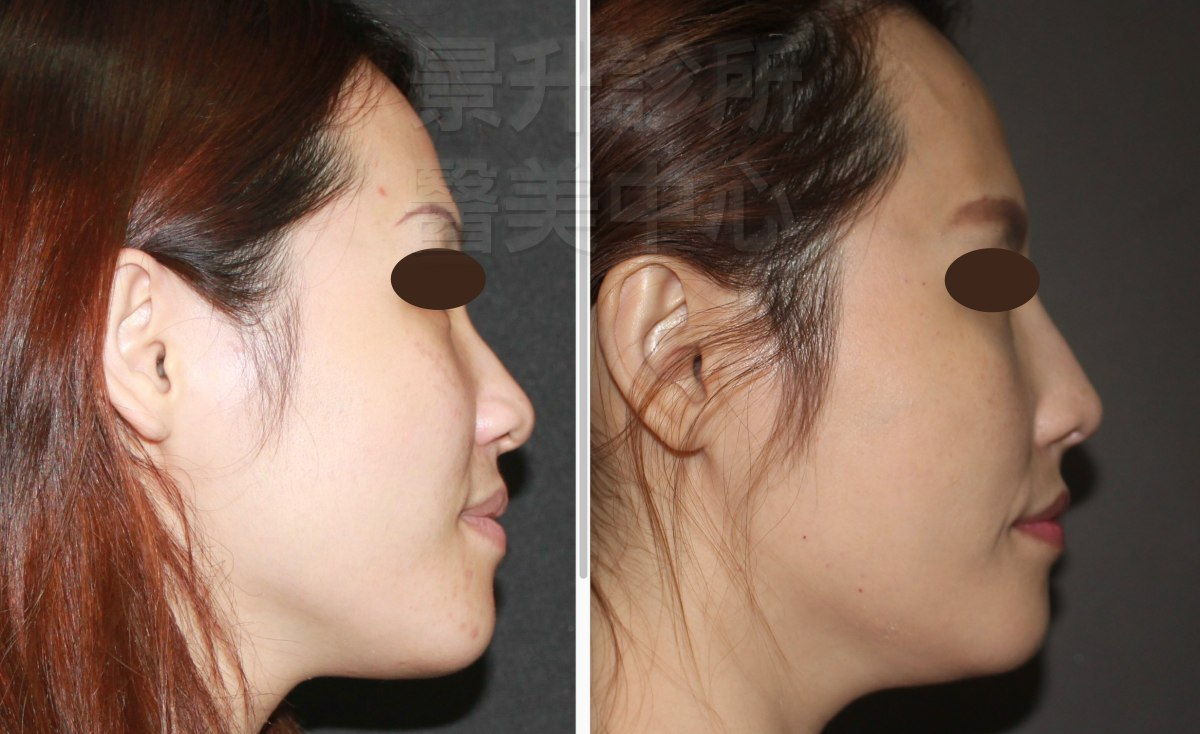 玻尿酸隆鼻後,山根變高、鼻被變直、鼻尖變挺