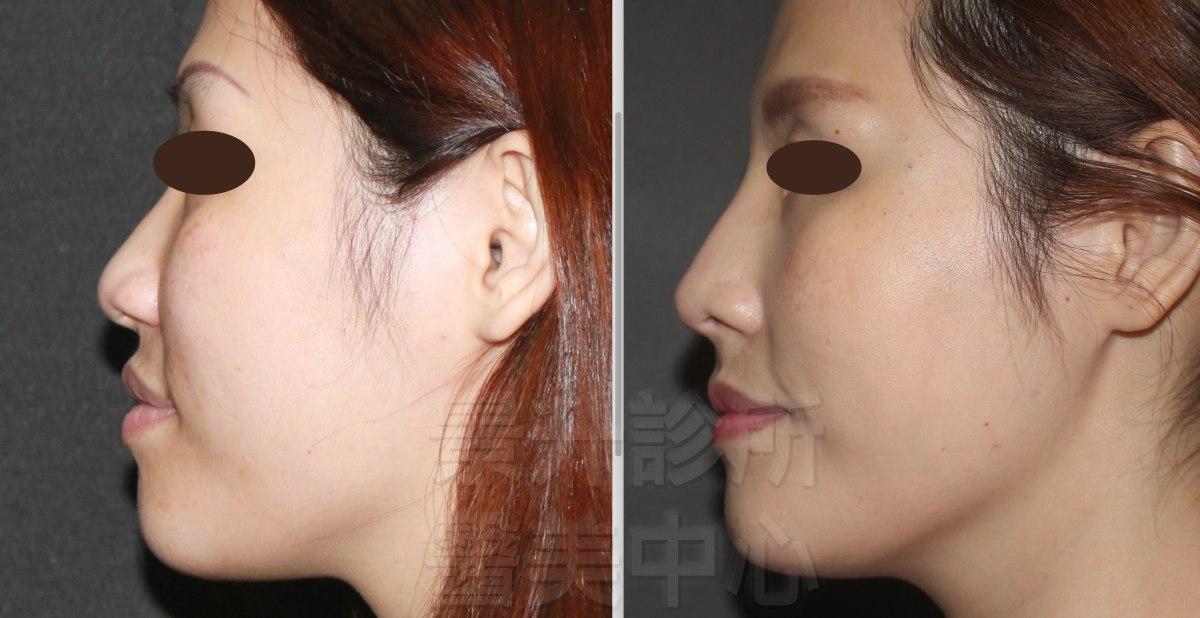 玻尿酸隆鼻後,鼻中柱變明顯、鼻尖更高、臉更立體