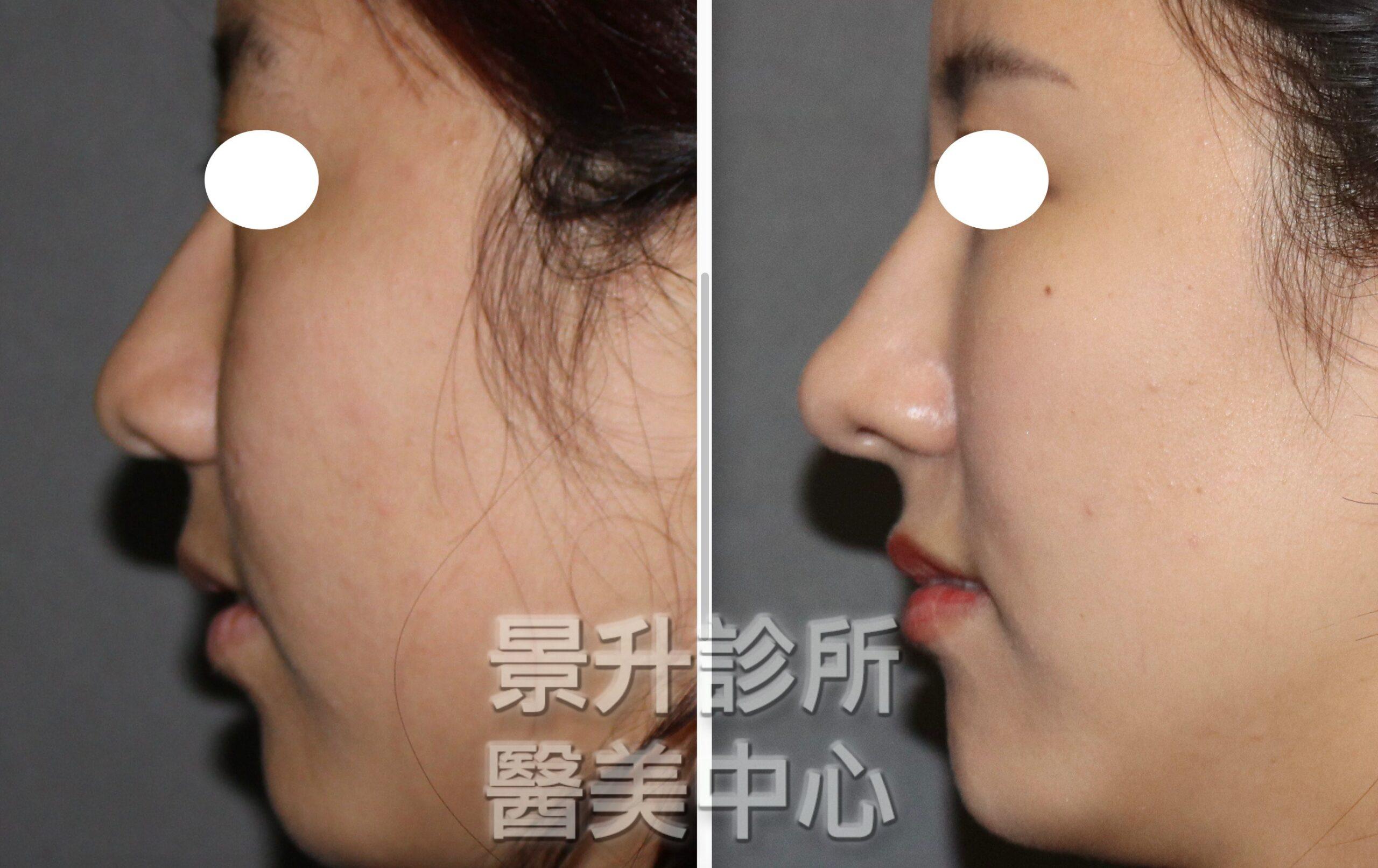 隆鼻的新選擇:玻尿酸隆鼻前後圖