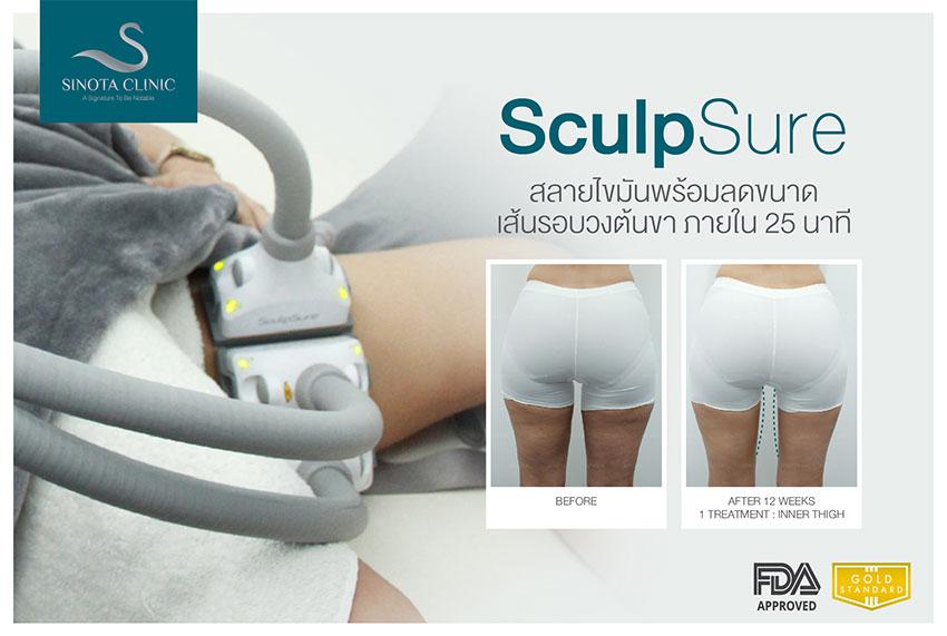 體外雷射溶脂SculpSure