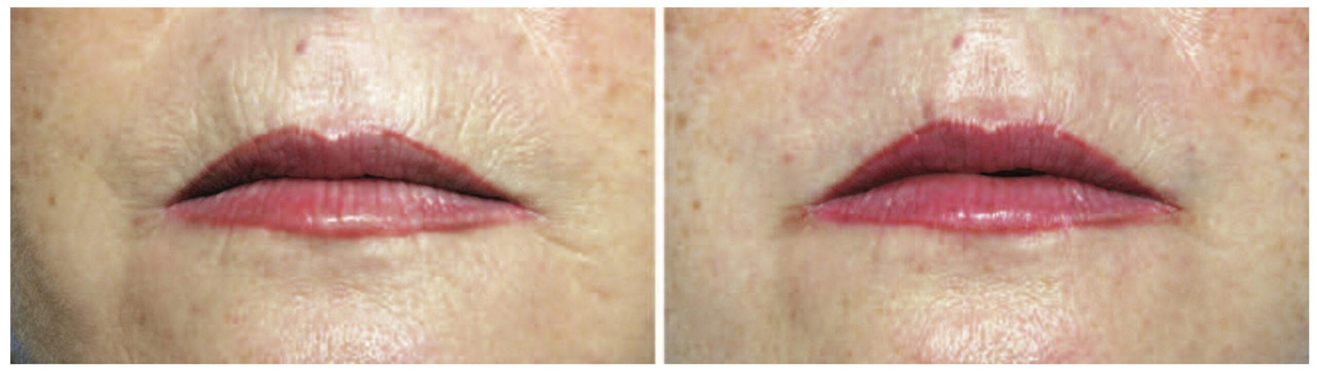 奈米脂肪對於改善皮膚細紋非常有效