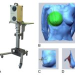 3-D 雷射掃描計算乳房體積是非常準確的乳房體積評估法