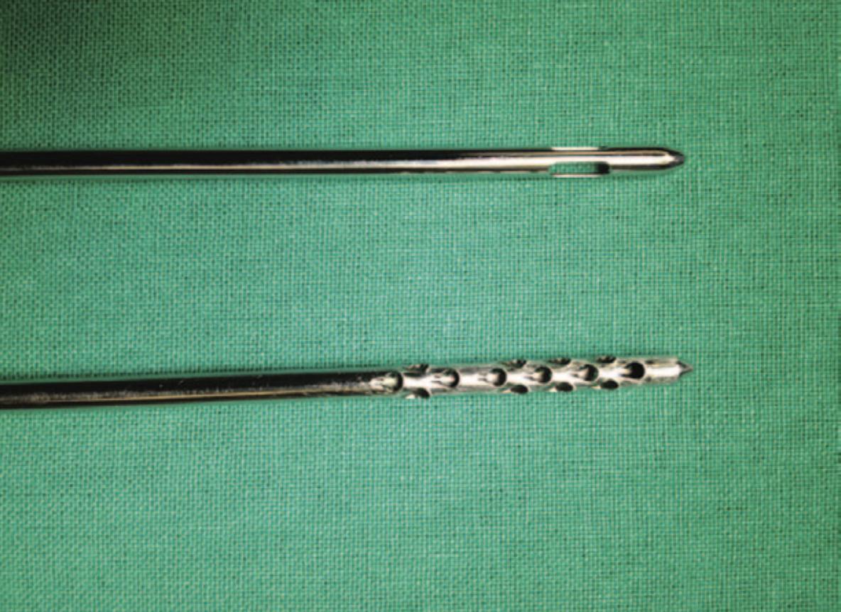上方抽脂管抽出的脂肪可做成「巨脂肪」,下方抽脂管抽出的脂肪可作「奈米脂肪」