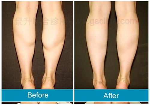 雷射溶脂或抽脂都可以瘦小腿