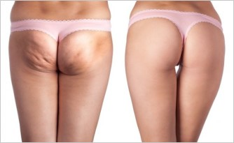 ▲橘皮組織是指皮膚出現不平整和點狀凹陷的現象,從外觀看起來很像橘子皮,因此而有橘皮組織的稱謂...