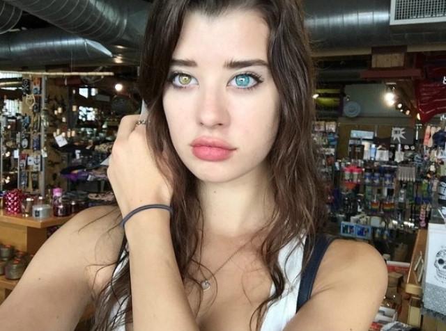 美國「陰陽眼」女模特兒