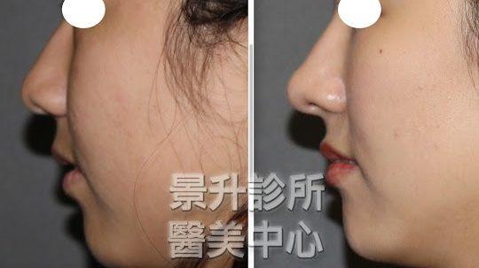 隆鼻的新選擇:玻尿酸隆鼻