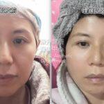 埋線拉皮是改善臉部下垂最有效的方法