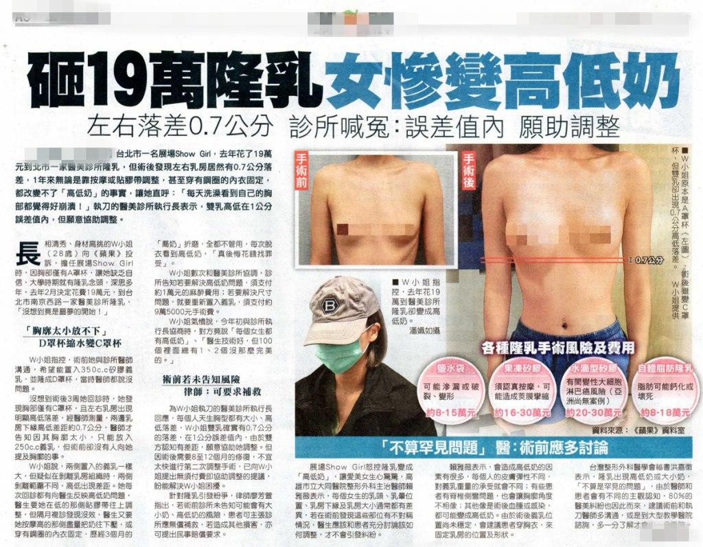 從一個女性隆乳後變成高低奶的新聞談起