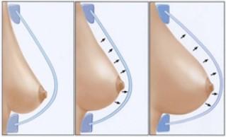 ▲自體脂肪隆乳不但是醫療,而且還是手術,當然也有風險...