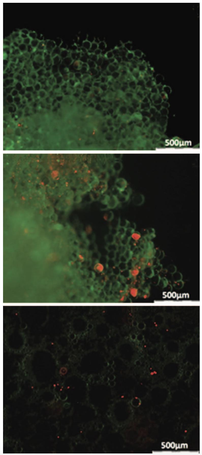 上圖是巨脂肪,中圖是微脂肪,下圖是奈米脂肪。奈米脂肪中已無顆粒的脂肪細胞