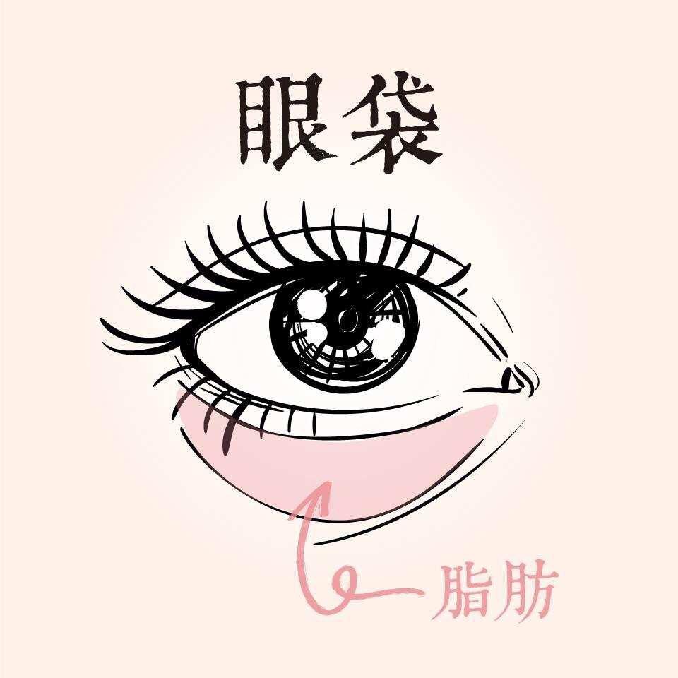 眼袋-不動手術的眼袋去除法