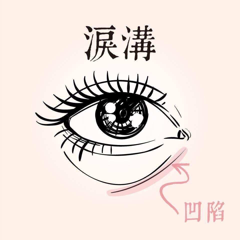 有些人會因為淚溝凹陷而使眼袋特別明顯
