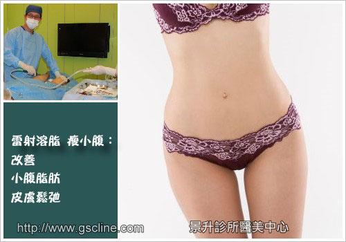 溶脂瘦小腹改善小腹脂肪皮膚鬆弛