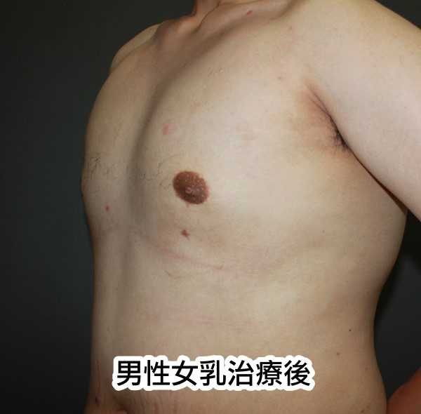 男性女乳治療後