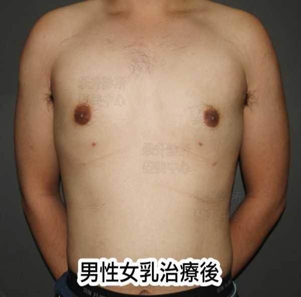 男性女乳治療後正面