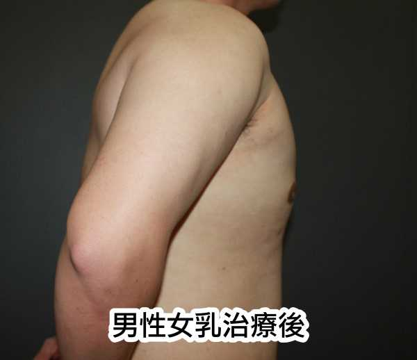 男性女乳治療後正側