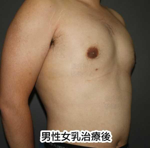 男性女乳治療後側面