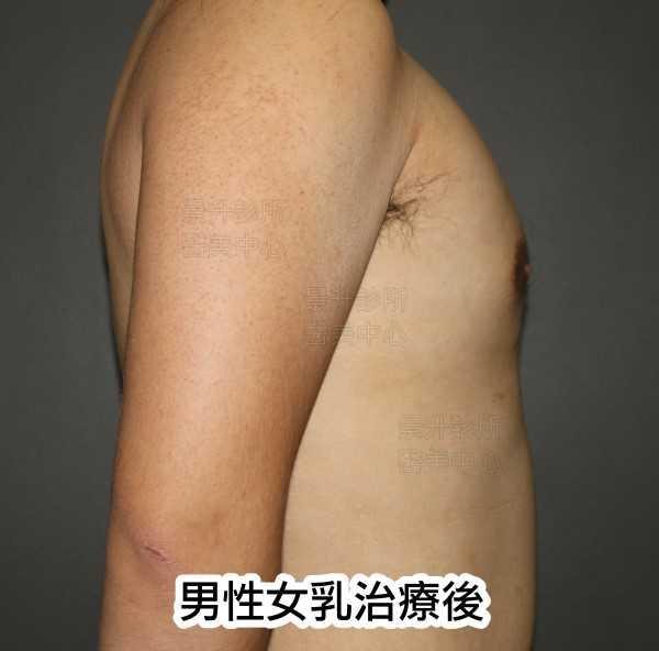 男性女乳治療後正側面