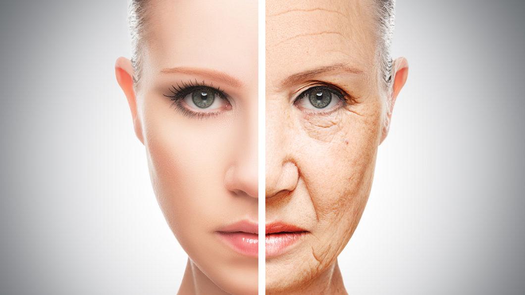 眼袋是中臉部老化最明顯的特徵