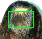 禿髮〈禿頭〉治療後