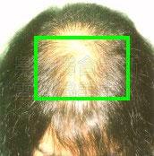 禿髮〈禿頭〉治療前