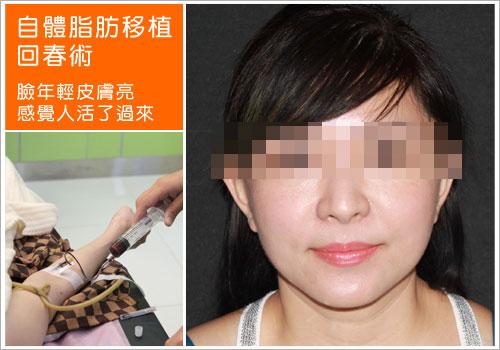 夫妻宮 淚溝 法令紋 額頭 臉頰 下巴 鼻子 自體脂肪解救你的夫妻宮_淚溝_法令紋