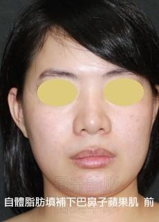 鼻子、蘋果肌、下巴自體脂肪填充前
