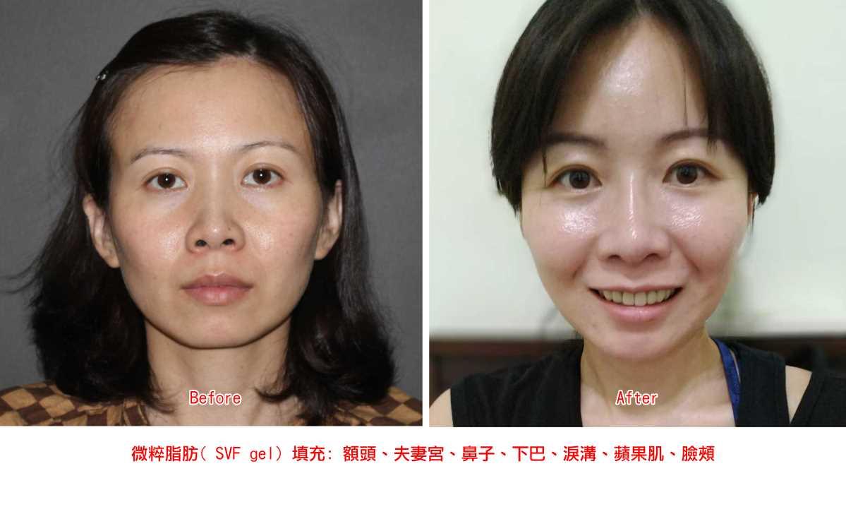 微粹脂肪臉部填充效果