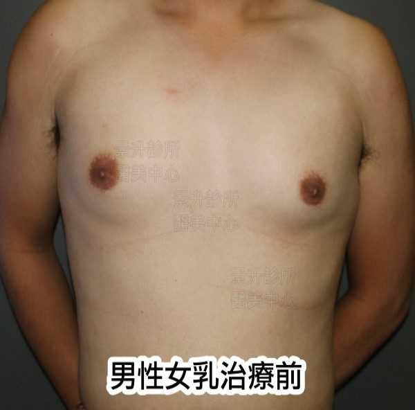 男性女乳治療前正面