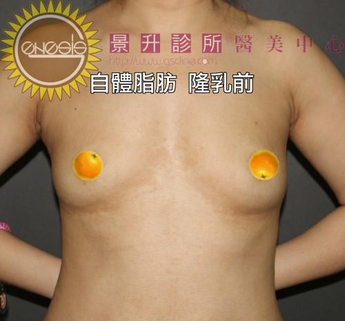 自體脂肪隆乳前