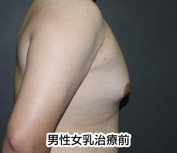 男性女乳治療前正側面