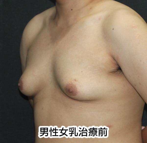 男性女乳治療前