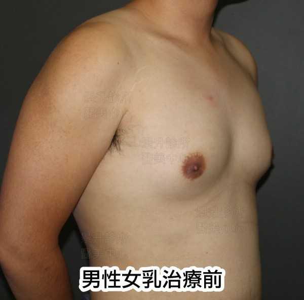 男性女乳治療前側面
