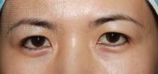 雙眼皮治療前