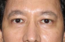 雙眼皮治療後