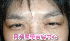 肌肉縮小素抬頭紋、皺眉紋及魚尾紋治療後