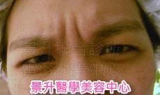 肌肉縮小素抬頭紋、皺眉紋及魚尾紋治療前