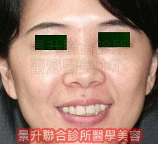 肌肉縮小素注射 治療眼袋、黑眼圈後